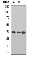 Western blot analysis of Cathepsin B expression in A549 (A); HT1080 (B); mouse heart (C) whole cell lysates.