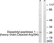 CTSC / Cathepsin C / JP Antibody - Western blot of extracts from Jurkat cells, treated with etoposide 25 uM 1h, using Dipeptidyl-peptidase 1 (heavy chain, Cleaved-Arg394) Antibody. The lane on the right is treated with the synthesized peptide.