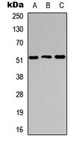 CTSC / Cathepsin C / JP Antibody - Western blot analysis of Cathepsin C LC expression in HEK293T (A); Raw264.7 (B); PC12 (C) whole cell lysates.