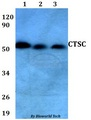 Western blot of CTSC antibody at 1:500 dilution. Lane 1: HEK293T whole cell lysate. Lane 2: Raw264.7 whole cell lysate. Lane 3: PC12 whole cell lysate.