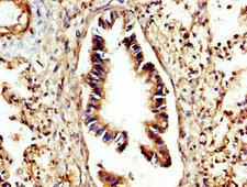 CTSC / Cathepsin C / JP Antibody - Immunohistochemistry image at a dilution of 1:300 and staining in paraffin-embedded human lung tissue performed on a Leica BondTM system. After dewaxing and hydration, antigen retrieval was mediated by high pressure in a citrate buffer (pH 6.0) . Section was blocked with 10% normal goat serum 30min at RT. Then primary antibody (1% BSA) was incubated at 4 °C overnight. The primary is detected by a biotinylated secondary antibody and visualized using an HRP conjugated SP system.