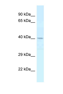 CTSE / Cathepsin E antibody LS-C145452 Western blot of Placenta lysate. Antibody concentration 1 ug/ml.  This image was taken for the unconjugated form of this product. Other forms have not been tested.