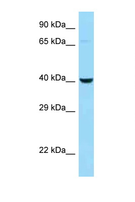 CTSE / Cathepsin E antibody Western blot of H226 Cell lysate. Antibody concentration 1 ug/ml.  This image was taken for the unconjugated form of this product. Other forms have not been tested.