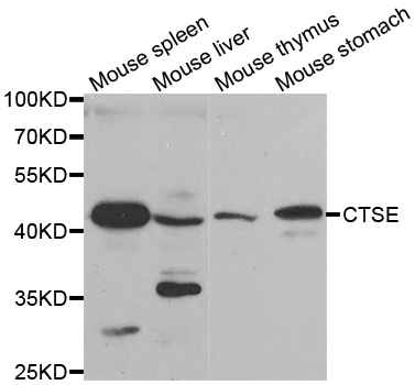 Western blot analysis of extracts of various tissues, using CTSE antibody.