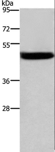 Western blot analysis of Mouse stomach tissue, using CTSE Polyclonal Antibody at dilution of 1:525.