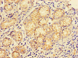 Immunohistochemistry of paraffin-embedded human gastric cancer using CSB-PA006188LA01HU at dilution of 1:100