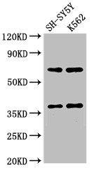 Positive WB detected in:SH-SY5Y whole cell lysate,K562 whole cell lysate;All lanes:CTSH antibody at 2.7?g/ml;Secondary;Goat polyclonal to rabbit IgG at 1/50000 dilution;Predicted band size: 38 KDa;Observed band size: 38,70 KDa;