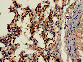 Immunohistochemistry of paraffin-embedded human lung tissue using CSB-PA006191LA01HU at dilution of 1:100
