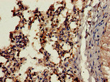 Immunohistochemistry of paraffin-embedded human lung tissue using CTSH Antibody at dilution of 1:100