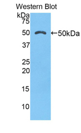 Western blot of recombinant CTSK / Cathepsin K.  This image was taken for the unconjugated form of this product. Other forms have not been tested.