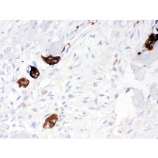 Cathepsin K was detected in paraffin-embedded sections of human osteosarcoma tissues using rabbit anti- Cathepsin K Antigen Affinity purified polyclonal antibody at 1 ug/mL. The immunohistochemical section was developed using SABC method.