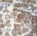 CTSK Antibody (Center E112) immunohistochemistry of formalin-fixed and paraffin-embedded human skeletal muscle followed by peroxidase-conjugated secondary antibody and DAB staining.