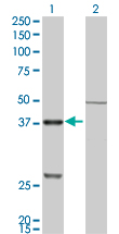 Western blot of CTSK expression in transfected 293T cell line by CTSK monoclonal antibody, clone 2F1.