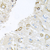 Immunohistochemistry of paraffin-embedded rat brain using CTSK antibodyat dilution of 1:100 (40x lens).
