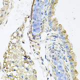 Immunohistochemistry of paraffin-embedded mouse lung using CTSK antibodyat dilution of 1:100 (40x lens).
