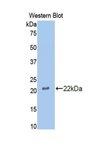 Western blot of recombinant CTSL / Cathepsin L.  This image was taken for the unconjugated form of this product. Other forms have not been tested.
