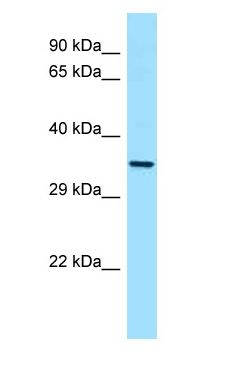 CTSL / Cathepsin L antibody Western Blot of HT1080.  This image was taken for the unconjugated form of this product. Other forms have not been tested.