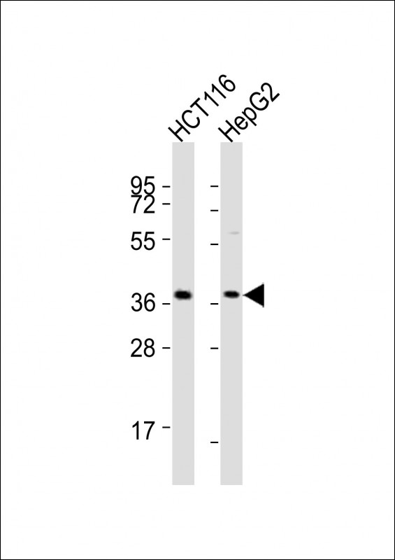 All lanes : Anti-CTSL Antibody at 1:8000 dilution Lane 1: HCT116 whole cell lysates Lane 2: HepG2 whole cell lysates Lysates/proteins at 20 ug per lane. Secondary Goat Anti-Rabbit IgG, (H+L), Peroxidase conjugated at 1/10000 dilution Predicted band size : 38 kDa Blocking/Dilution buffer: 5% NFDM/TBST.
