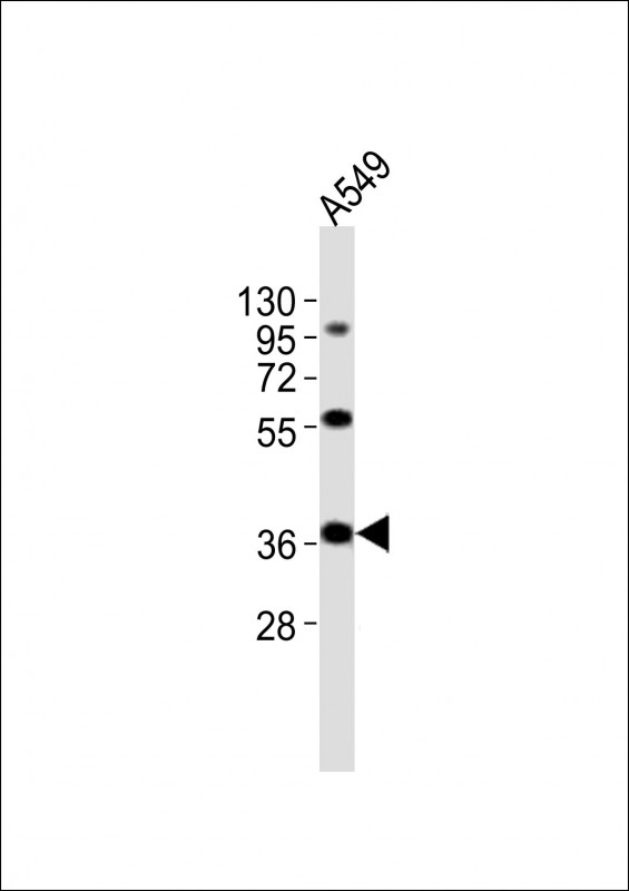 Anti-CTSL Antibody at 1:2000 dilution + A549 whole cell lysates Lysates/proteins at 20 ug per lane. Secondary Goat Anti-Rabbit IgG, (H+L), Peroxidase conjugated at 1/10000 dilution Predicted band size : 38 kDa Blocking/Dilution buffer: 5% NFDM/TBST.