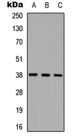 Western blot analysis of Cathepsin L HC expression in HEK293T (A); NS-1 (B); PC12 (C) whole cell lysates.