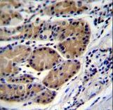 CTSO Antibody - CTSO Antibody immunohistochemistry of formalin-fixed and paraffin-embedded human stomach tissue followed by peroxidase-conjugated secondary antibody and DAB staining.