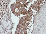 IHC of paraffin-embedded endo mitral OVCA using CTSS antibody at 1:100 dilution.