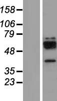 CTSW / Cathepsin W Protein - Western validation with an anti-DDK antibody * L: Control HEK293 lysate R: Over-expression lysate