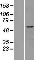 CUEDC1 Protein - Western validation with an anti-DDK antibody * L: Control HEK293 lysate R: Over-expression lysate