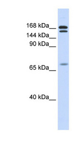 CUX2 Antibody - CUX2 / CUTL2 antibody Western blot of Fetal Muscle lysate. This image was taken for the unconjugated form of this product. Other forms have not been tested.