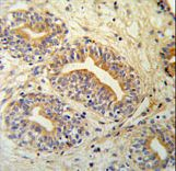 CWC15 Antibody - CWC15 Antibody IHC of formalin-fixed and paraffin-embedded prostate carcinoma followed by peroxidase-conjugated secondary antibody and DAB staining.