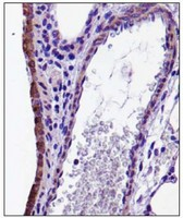 Immunohistochemistry: CX3CL1 Antibody - Analysis of CX3CL in mouse lung.  This image was taken for the unconjugated form of this product. Other forms have not been tested.