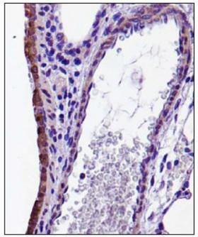 CX3CL1 / Fractalkine Antibody - Immunohistochemistry: CX3CL1 Antibody - Analysis of CX3CL in mouse lung.  This image was taken for the unconjugated form of this product. Other forms have not been tested.