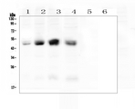 Western blot analysis of Coxsackie Adenovirus Receptor using anti-Coxsackie Adenovirus Receptor antibody. Electrophoresis was performed on a 5-20% SDS-PAGE gel at 70V (Stacking gel) / 90V (Resolving gel) for 2-3 hours. The sample well of each lane was loaded with 50ug of sample under reducing conditions. Lane 1: human A431 whole cell lysates, Lane 2: human Hela whole cell lysates, Lane 3: human HepG2 whole cell lysates, Lane 4: human Caco-2 whole cell lysates, Lane 5: human U-937whole cell lysates(negative), Lane 6: human THP-1whole cell lysates(negative). After Electrophoresis, proteins were transferred to a Nitrocellulose membrane at 150mA for 50-90 minutes. Blocked the membrane with 5% Non-fat Milk/ TBS for 1.5 hour at RT. The membrane was incubated with rabbit anti-Coxsackie Adenovirus Receptor antigen affinity purified polyclonal antibody at 0.5 µg/mL overnight at 4°C, then washed with TBS-0.1% Tween 3 times with 5 minutes each and probed with a goat anti-rabbit IgG-HRP secondary antibody at a dilution of 1:10000 for 1.5 hour at RT. The signal is developed using an Enhanced Chemiluminescent detection (ECL) kit with Tanon 5200 system. A specific band was detected for Coxsackie Adenovirus Receptor at approximately 50KD. The expected band size for Coxsackie Adenovirus Receptor is at 40KD.