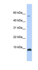 CXCL6 antibody Western blot of Transfected 293T cell lysate. This image was taken for the unconjugated form of this product. Other forms have not been tested.