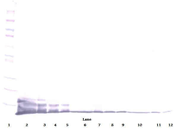 Western Blot (reducing) of CXCL6 antibody LS-C104344.  This image was taken for the unconjugated form of this product. Other forms have not been tested.