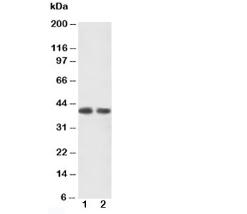 CXCR2 Antibody - Western blot testing of CXCR2 antibody and Lane 1: human rectal cancer tissue lysate; 2: human rectal cancer tissue lysate