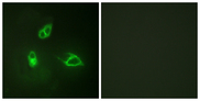 Immunofluorescence analysis of HepG2 cells, using IL-8R beta/CDw128 beta Antibody. The picture on the right is blocked with the synthesized peptide.