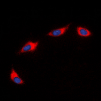 CXCR2 Antibody - Immunofluorescent analysis of CD182 staining in HeLa cells. Formalin-fixed cells were permeabilized with 0.1% Triton X-100 in TBS for 5-10 minutes and blocked with 3% BSA-PBS for 30 minutes at room temperature. Cells were probed with the primary antibody in 3% BSA-PBS and incubated overnight at 4 ??C in a humidified chamber. Cells were washed with PBST and incubated with a DyLight 594-conjugated secondary antibody (red) in PBS at room temperature in the dark. DAPI was used to stain the cell nuclei (blue).