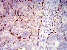 CXCR2 Antibody - Immunohistochemical analysis of paraffin-embedded cervical cancer tissues using CD182 mouse mAb with DAB staining.