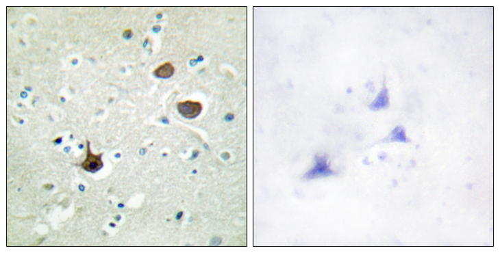 CXCR4 Antibody - Immunohistochemistry analysis of paraffin-embedded human brain, using CXCR4 (Phospho-Ser339) Antibody. The picture on the right is blocked with the phospho peptide.