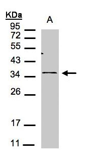 Sample(30 g of whole cell lysate). A:293T. 12% SDS PAGE. CXCR6 antibody diluted at 1:1000