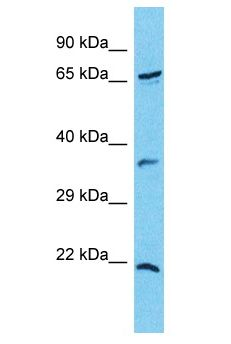 CXorf23 Antibody - CXorf23 antibody Western Blot of COLO205. Antibody dilution: 1 ug/ml.  This image was taken for the unconjugated form of this product. Other forms have not been tested.