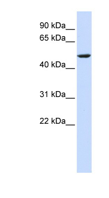 CYB561 antibody Western blot of HeLa lysate. This image was taken for the unconjugated form of this product. Other forms have not been tested.