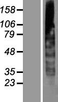 CYB561A3 / CYBASC3 Protein - Western validation with an anti-DDK antibody * L: Control HEK293 lysate R: Over-expression lysate