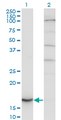 Western blot of CYB5A expression in transfected 293T cell line by CYB5A monoclonal antibody.