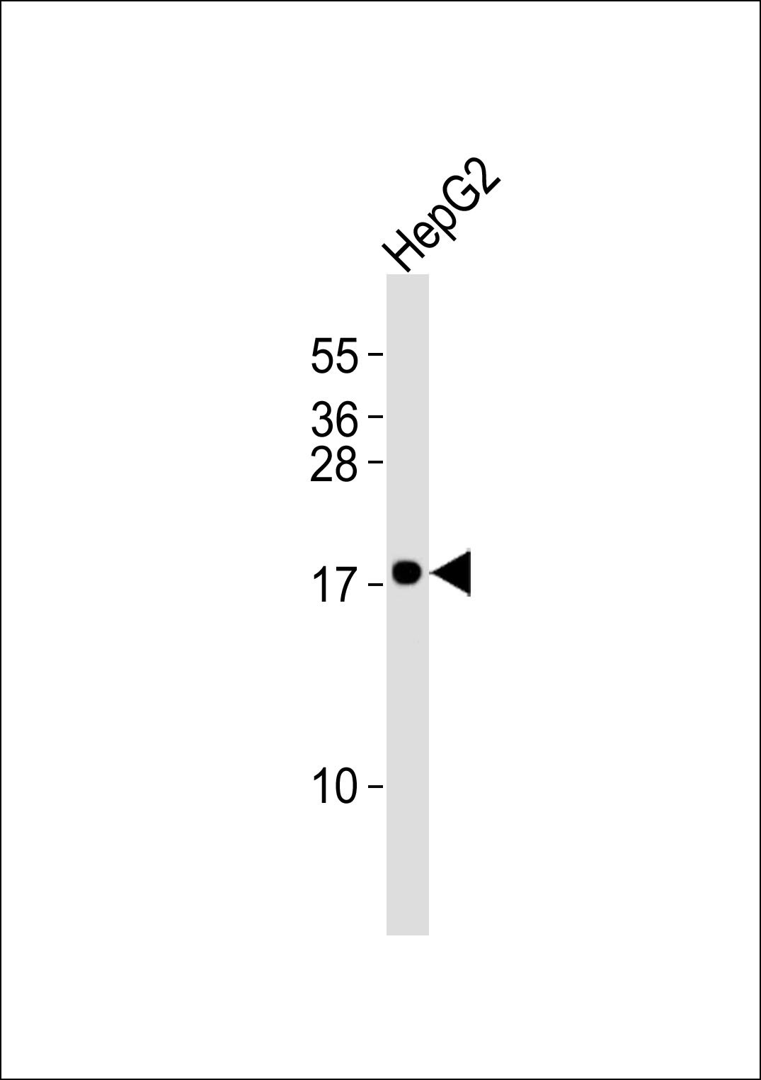 Anti-Cytochrome b5A Antibody at 1:1000 dilution + HepG2 whole cell lysates Lysates/proteins at 20 ug per lane. Secondary Goat Anti-Rabbit IgG, (H+L),Peroxidase conjugated at 1/10000 dilution Predicted band size : 15 kDa Blocking/Dilution buffer: 5% NFDM/TBST.