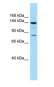 CYFIP1 antibody Western Blot of COLO205.  This image was taken for the unconjugated form of this product. Other forms have not been tested.