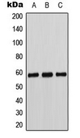CYP11B1+2 Antibody - Western blot analysis of Cytochrome P450 11B1/2 expression in K562 (A); Caki1 (B); MCF7 (C) whole cell lysates.
