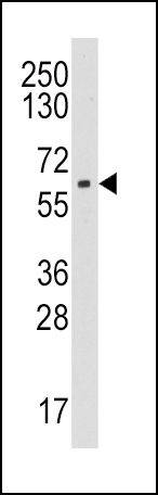 Western blot of anti-CYP19A1 antibody in HL60 cell line lysates (35 ug/lane). CYP19A1(arrow) was detected using the purified antibody.