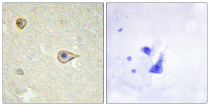 Immunohistochemistry analysis of paraffin-embedded human brain tissue, using Cytochrome P450 19A1 Antibody. The picture on the right is blocked with the synthesized peptide.